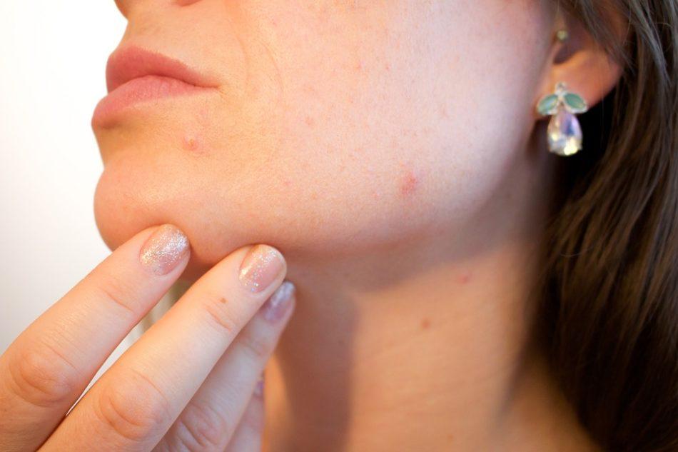 Integratori omega 3 per combattere acne e impurità della pelle