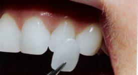 faccette-dentali-